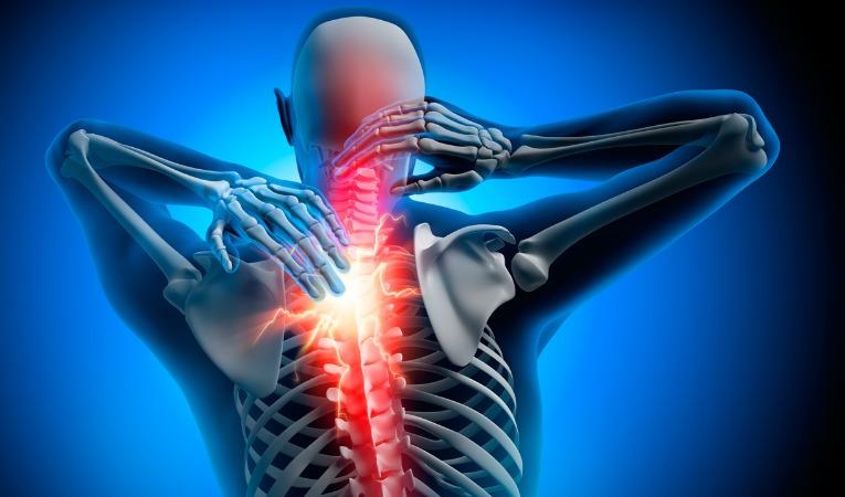 Photo 3D de dos avec douleur dorsale dorsalgie interscapulaire coup d'éléctricité