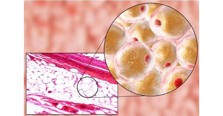 photo microscopique d'une cellule graisseuse lipidique que l'on retrouve dans la graisse des fesses notamment