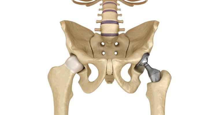 photo anatomique 3D du remplacement d'une hanche usée par une prothèse totale de hanche