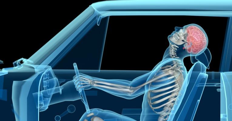 photo 3D de profil d'un accident de voiture provoquant un coup du lapin qui peut être à l'origine d'un torticolis