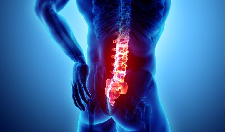 photo 3D de 3/4 dos montrant douleur colonne lombaire pour lombalgie chronique