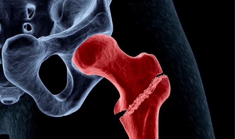 photo 3D coloré mettant en évidence une fracture du col du fémur nécessitant une chirurgie de prothèse de hanche
