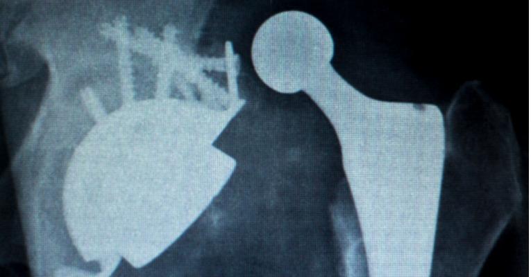 radiographie d'une luxation de prothèse de hanche